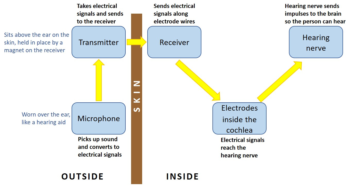 Schematic showing the capture of sound by the microphone, conversion to electrical signals and direction of the signals to the hearing nerve via the transmitter behind the ear, receiver under the skin and electrodes into the cochlea of the inner ear.and